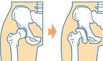 変形性股関節症1