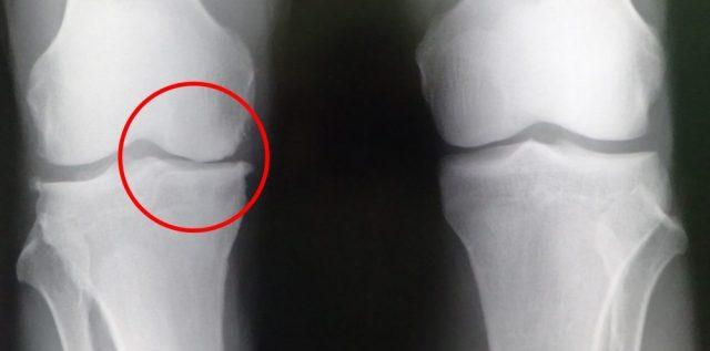 画像2、変形性膝関節症のレントゲン